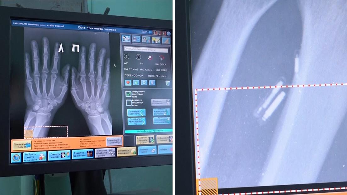"""Un médico ruso se implanta 5 microchips en las manos para hacer su vida """"más fácil"""" (VIDEO)"""