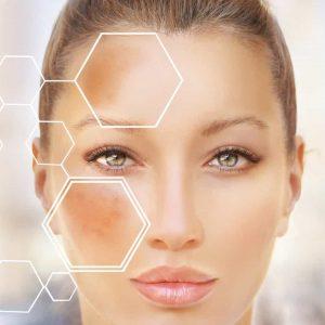 Pigmentação e vermelhidão: Máscara facial clareadora de manchas