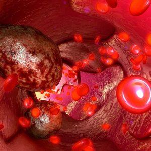 Vírus que ataca planta evita câncer metastático em teste com roedores