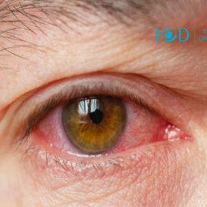 """""""Olho vermelho pode levar a cegueira"""" Entenda sobre Uveíte!"""